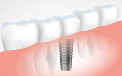 Chronique dentaire: l'implant dentaire, un choix sûr !