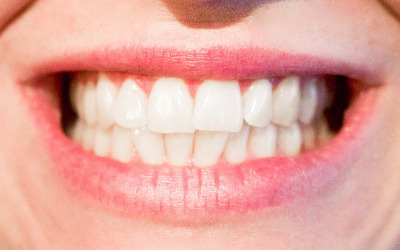 Chronique dentaire: la gingivite, une maladie trop répandue
